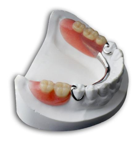 Les prothèses dentaires amovibles