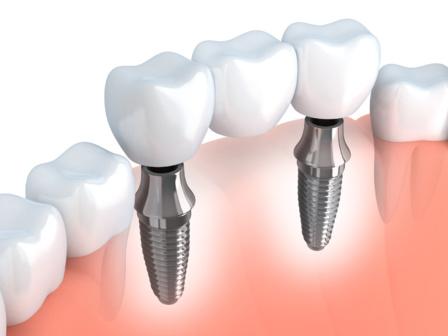Les prothèses dentaires fixes