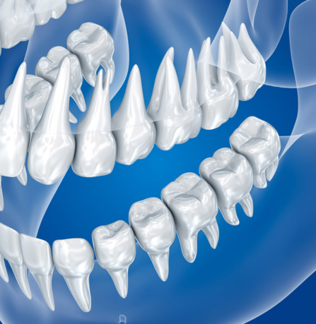 Les dents de sagesse