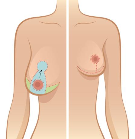 reduction mammaire douleur post operatoire