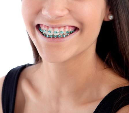 Appareil ortodontique