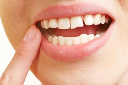 Causes de la gingivite