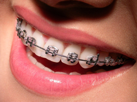 Appareil dentaire classique