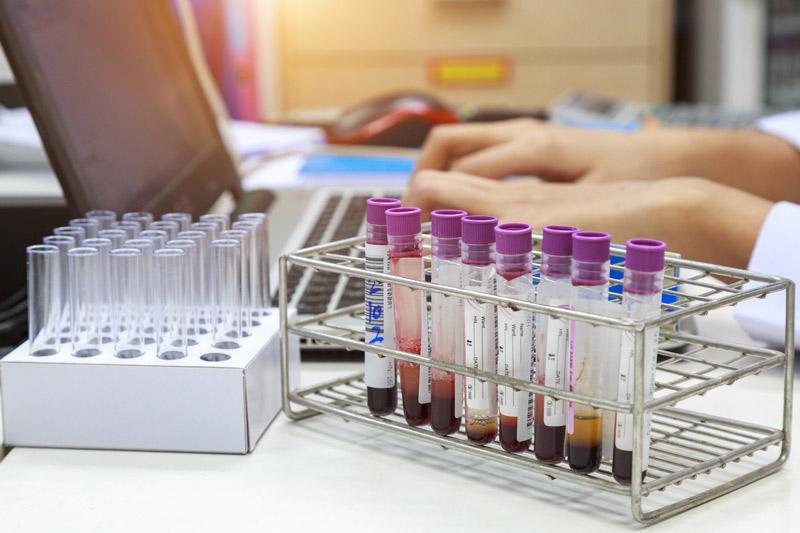 Recherche ADN