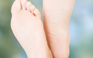 tout savoir sur les problèmes de pieds plats
