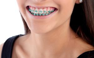 pourquoi et quand recourir à un appareil dentaire ?